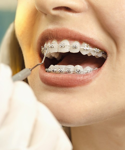 Clínica Dentária Morgado - Ortodontia